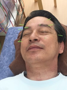 眼精疲労鍼治療の様子